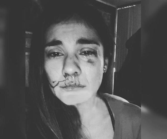 Video inédito de la actrizEileen Moreno luego de ser golpeada por su pareja