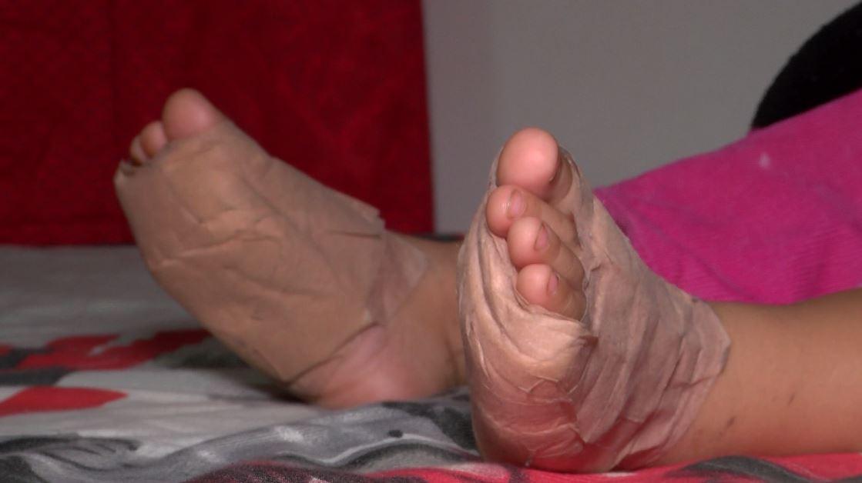 Buscan ayuda para tratamiento de bebé que se quemó los pies