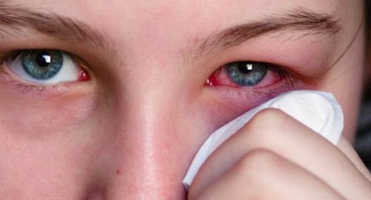 Por la letra enredada del médico, mujer se aplicó en un ojo crema para la disfunción eréctil