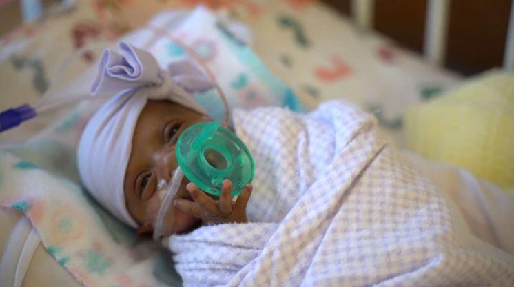La bebé prematura más pequeña del mundo pesó lo mismo que una manzana
