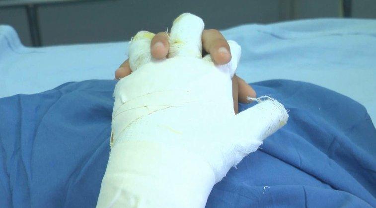 Autoridades de salud  hacen un llamado al cuidado con la pólvora